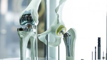 Создан прорывной метод лечения сложных переломов