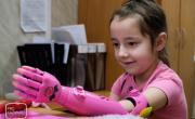 В Казани детям начали ставить протезы руки, распечатанные на 3D-принтере