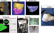 BioMask – напечатанная на 3D-принтере маска для лечения травм и ожогов лица